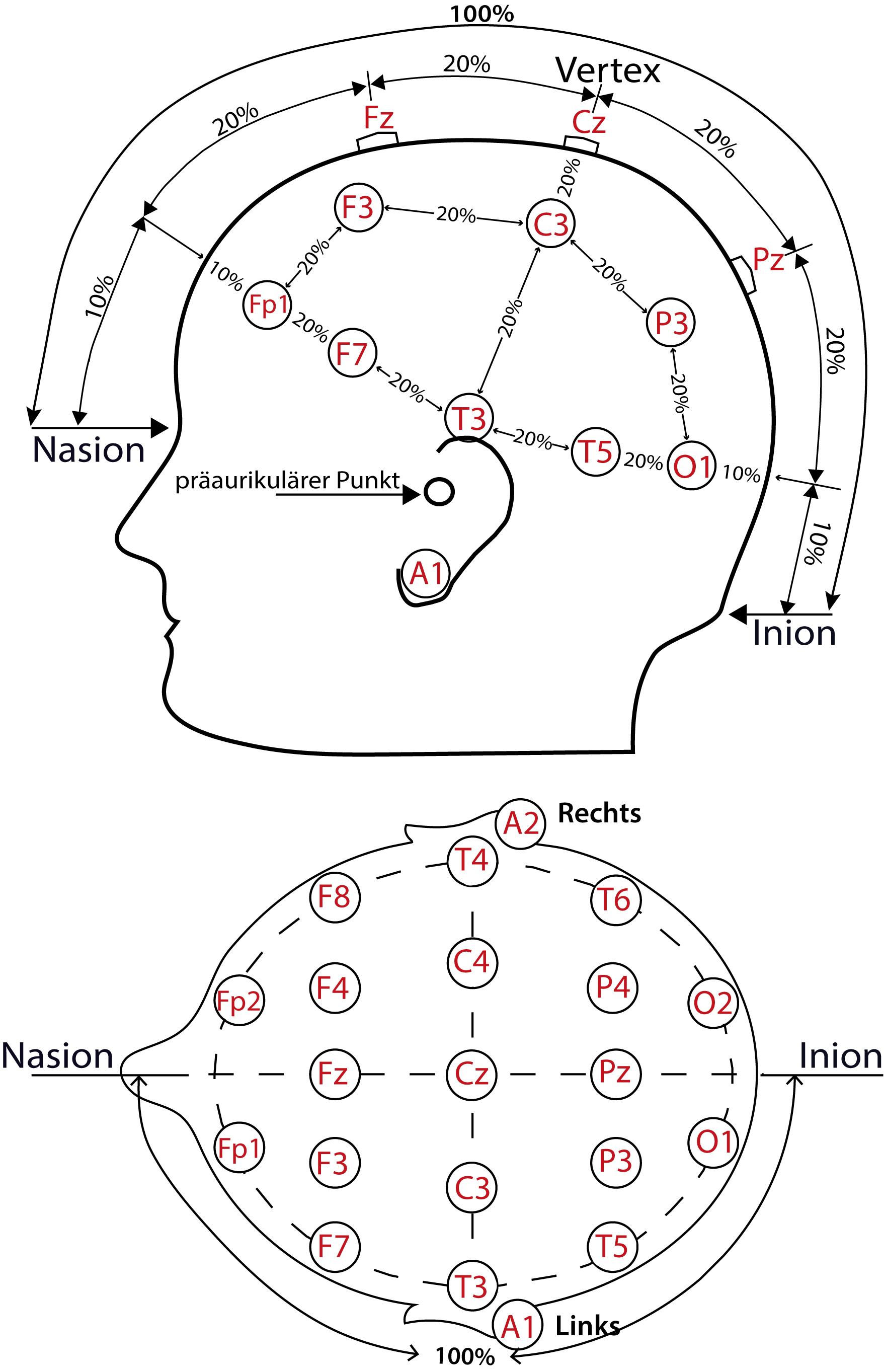 Elektrodenanordnung bei einem EEG nach 20 20   TerniMed